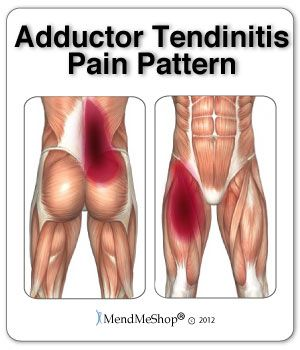 Hurt Tendon In Hip How To Heal Adductor Tendonitis Pain