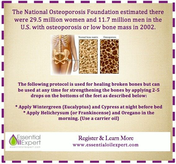 16++ Can essential oils reverse osteoporosis ideas
