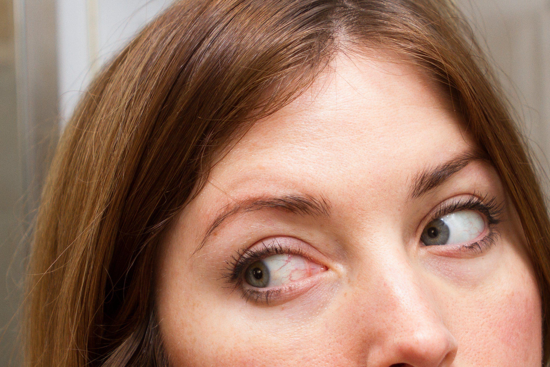 91ee60df7dc0e40b11f2ba93a6e9f7d7 - How To Get Rid Of Puffy Eyes From No Sleep