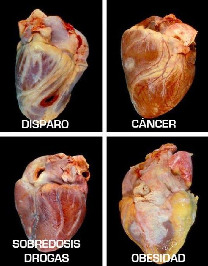 Como se ve el corazón de una persona con obesidad? | Ciencia ...
