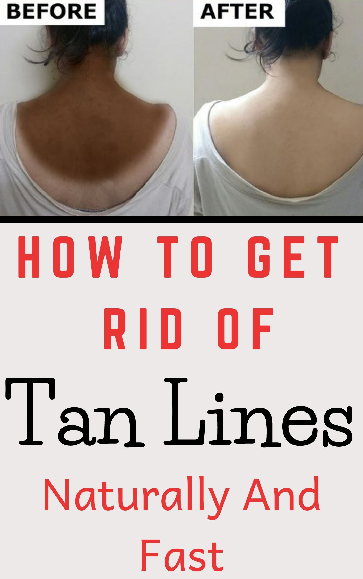 How To Get Rid Of Tan Lines Naturally And Fast Tan lines