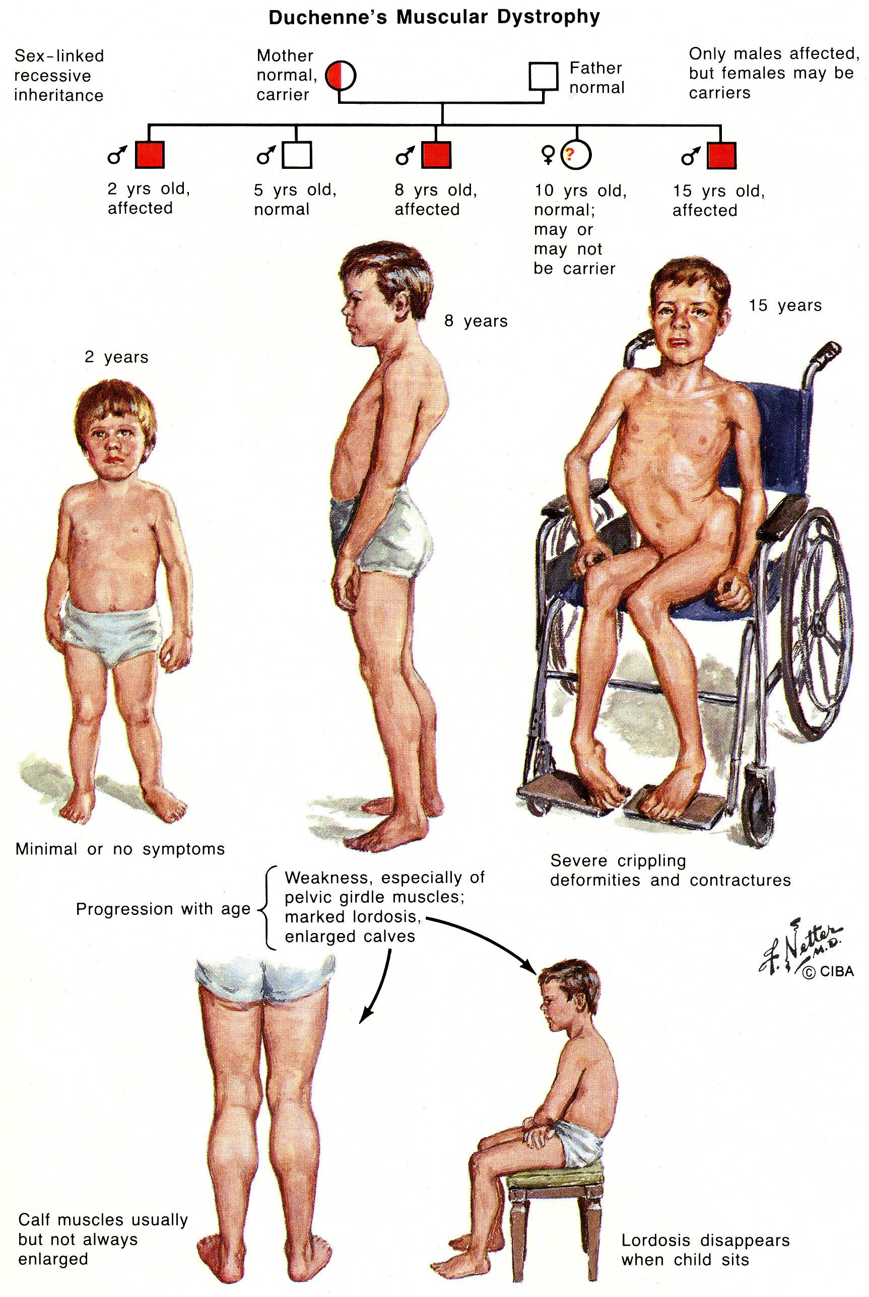 Duchenne Muscular Dystrophy Symptoms Toddlers Pin By Julie Ruhl On Duchenne Muscular Dystrophy Muscular