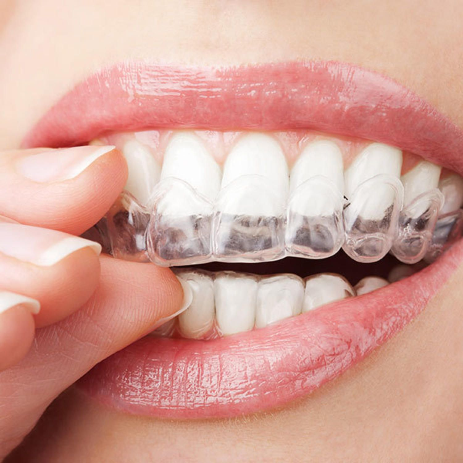 7 instant beauty confidence boosters to try today teeth whitening here are seven no fail beauty confidence boosters that will have you feeling like yourself in no solutioingenieria Images