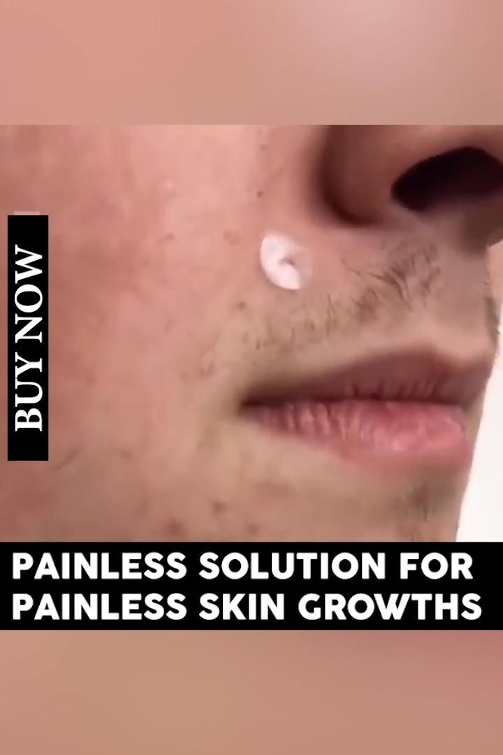 Remove Acne Or Tags Painlessly 50 Off Video In 2020