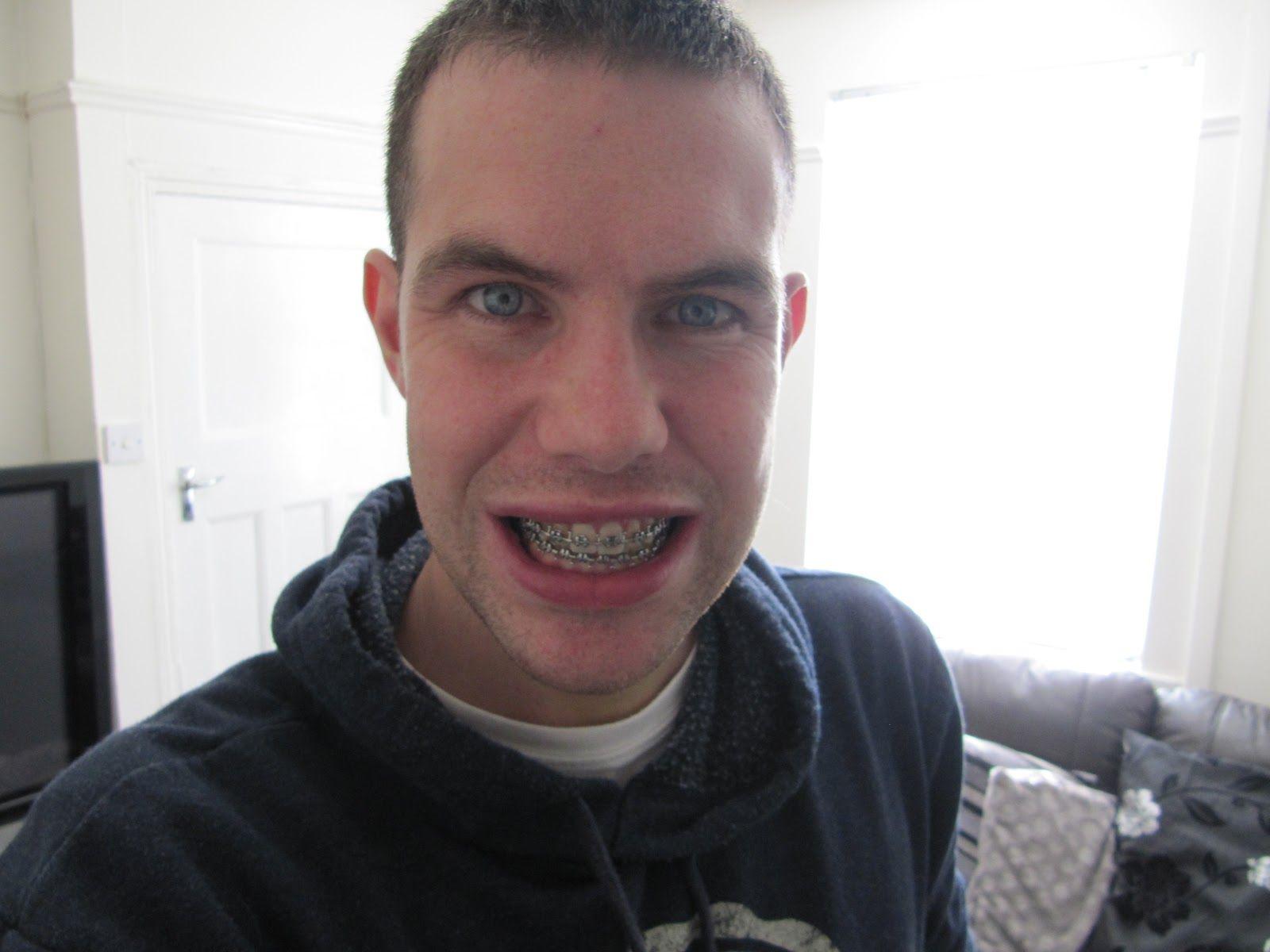 headgear Gay braces
