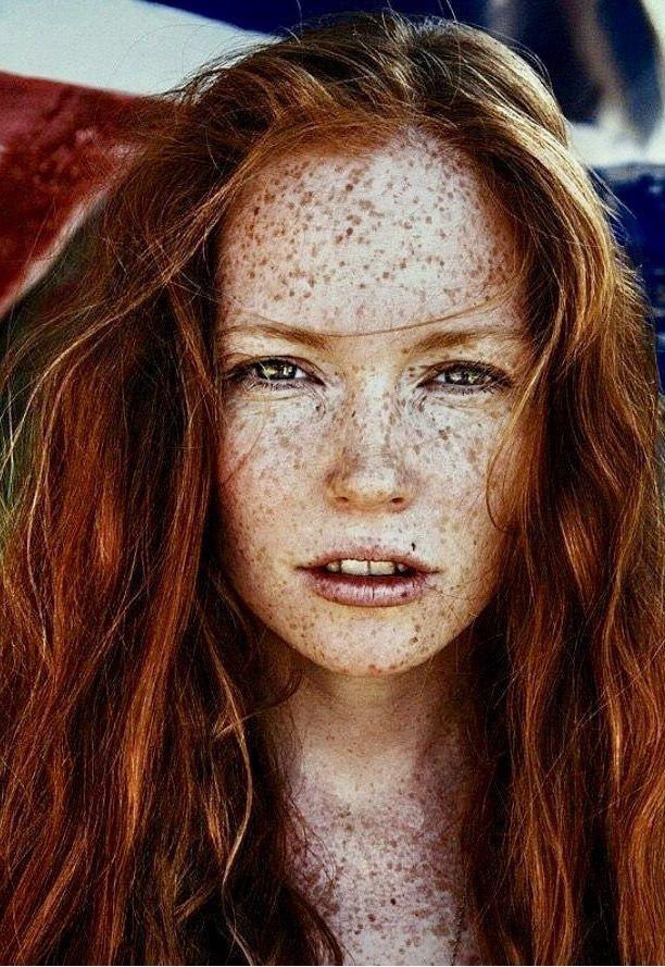 Rote Haare Sommersprossen | Rote haare, Sommersprossen