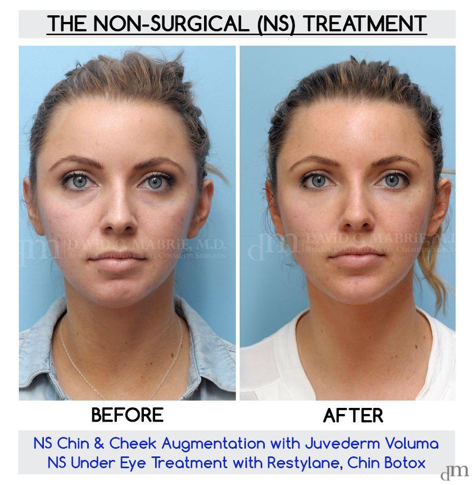 Juvederm Voluma Restylane Volume Sculptmd 514 728 5783 Facial Fillers Dermal Fillers Botox