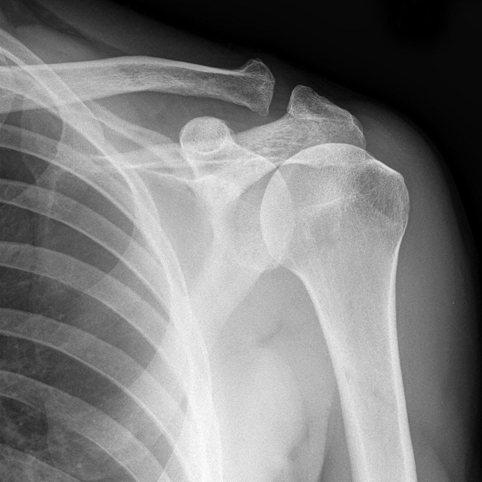 Fein Fußanatomie X Ray Bilder - Menschliche Anatomie Bilder ...