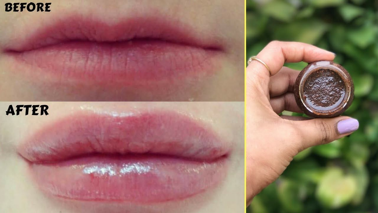 Here S The Link To The Tutorial Gt Gt How To Get Bigger And Fuller Lips Naturally In Just 5 Minutes Lt Fuller Lips Naturally Lips Fuller How To Get Bigger