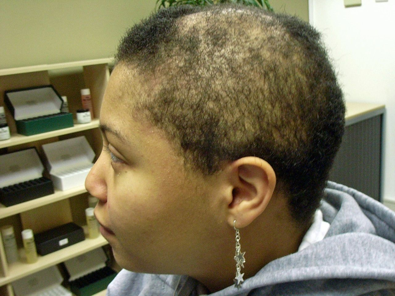 Alopecia Hair Styles: Alopecia Hair Loss Treatment *** For More Information