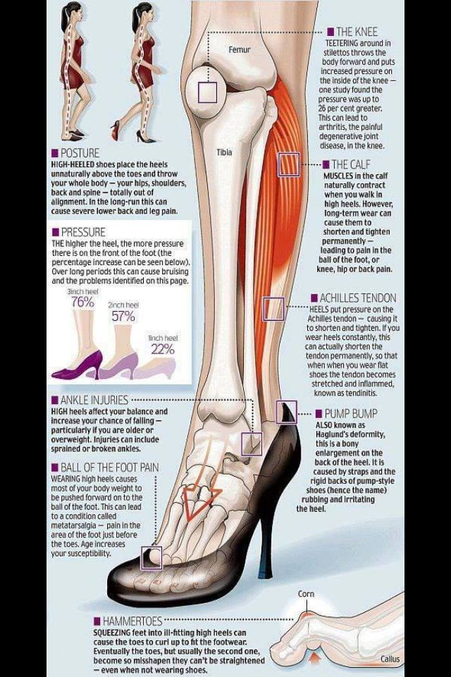 The effects of high heels on the body | Massage therapy | Pinterest ...