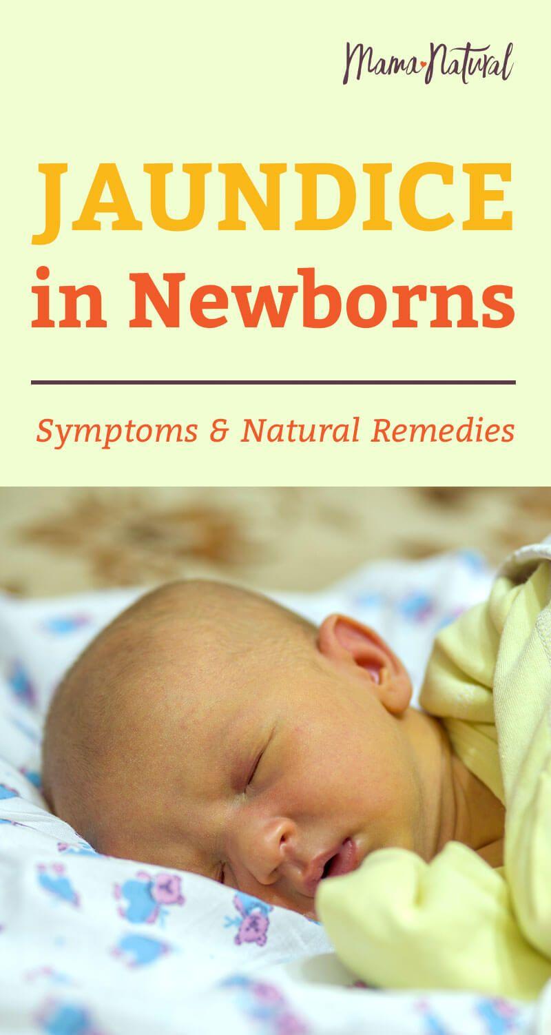Natural Ways To Treat Jaundice In Newborn Babies Baby Jaundice