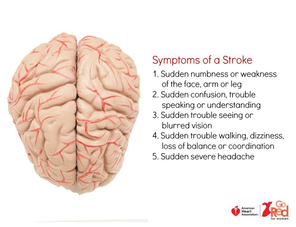 Symptoms Of A Stroke Diagram Of The Brain   Stroke  Brain