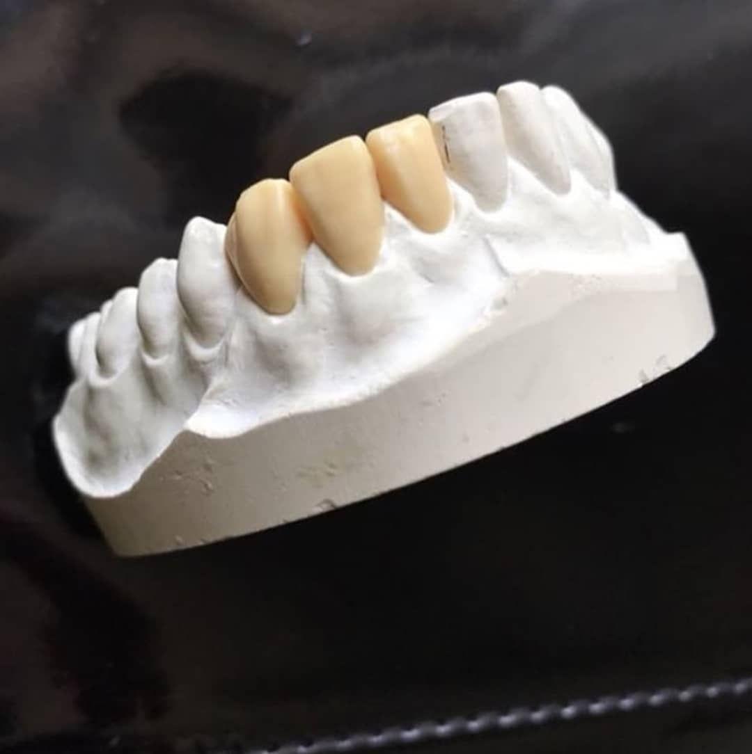 dentalnatalia dentistry dentistry dental odontologia tooth teeth