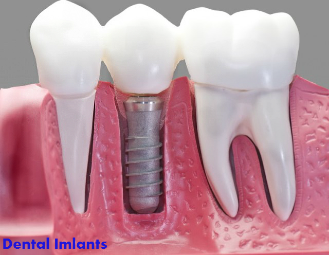 How Much Do Dental Implants Cost? Average Dental Implant