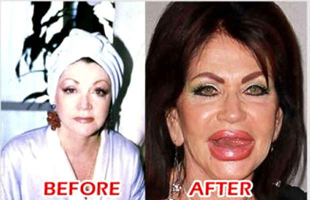 Custom Cosmetic Surgery Addiction essay paper writing service