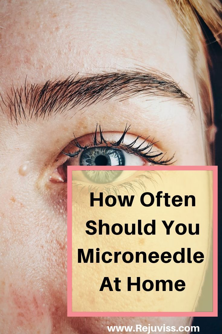 How Often Should You Microneedle At Home in 2020 (With images)