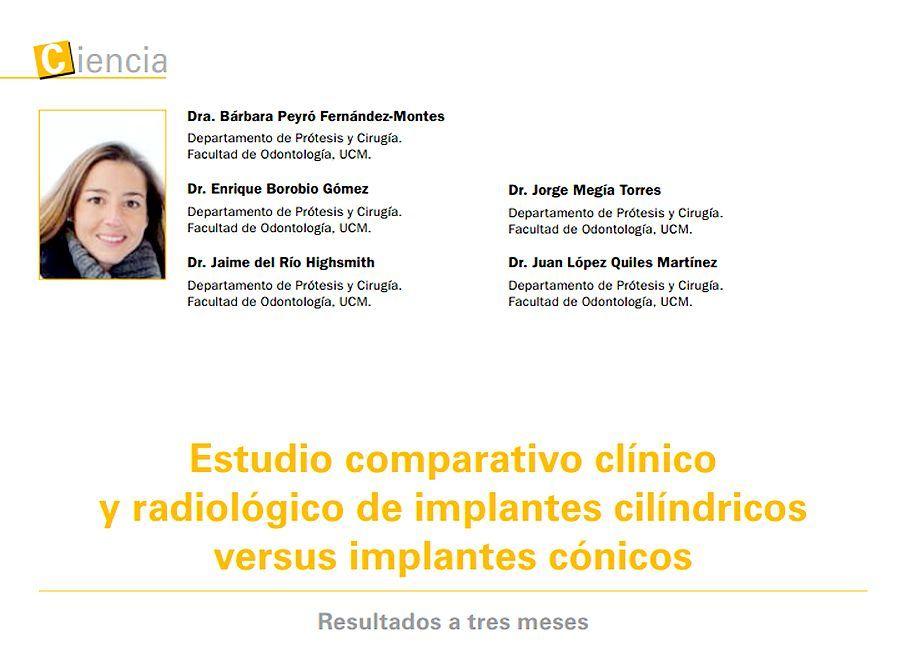 implantes-dentales-cilindricos