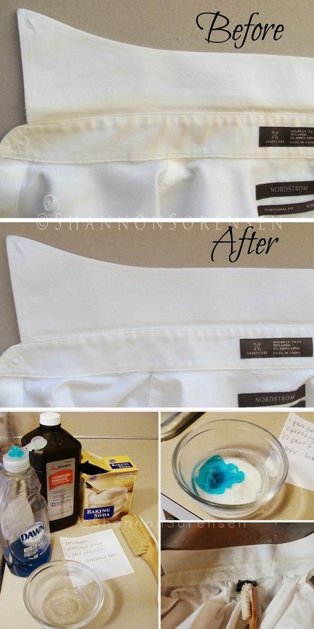 924277cc3be1a18064ecdea0f5e04bb4 - How To Get Rid Of Yellow Stains On White Fabric