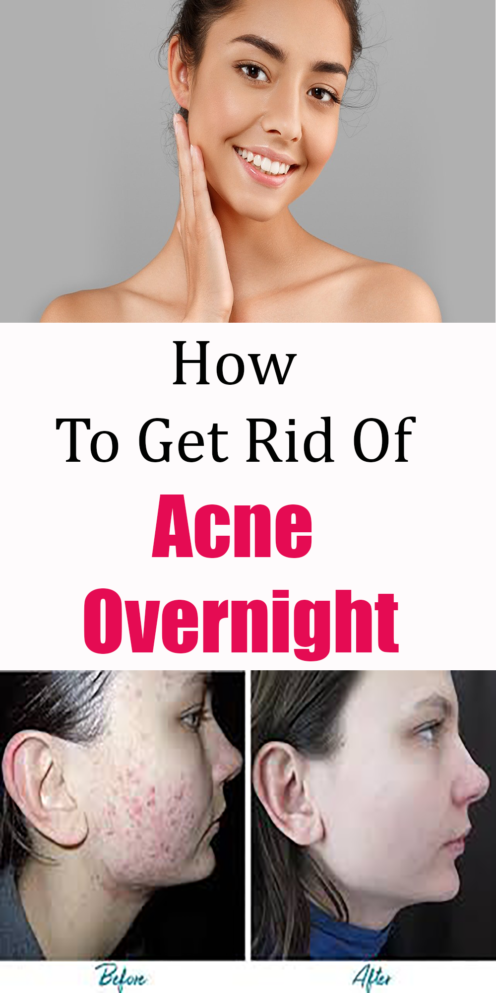 How To Get Rid Of Acne Overnight In 2020 Acne Overnight How To Get Rid Of Acne Acne Scar Remedies