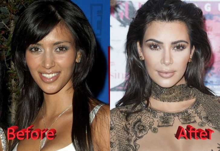 Kim Kardashian Plastic Surgery Before After Kim Kardashian