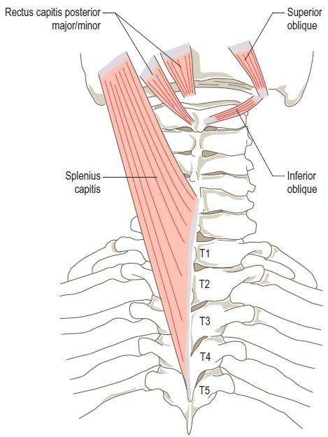 The left splenius capitis, rectus capitis posterior minor ...