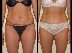 e163fb2e77225 7 tummy tuck surgery recovery tips