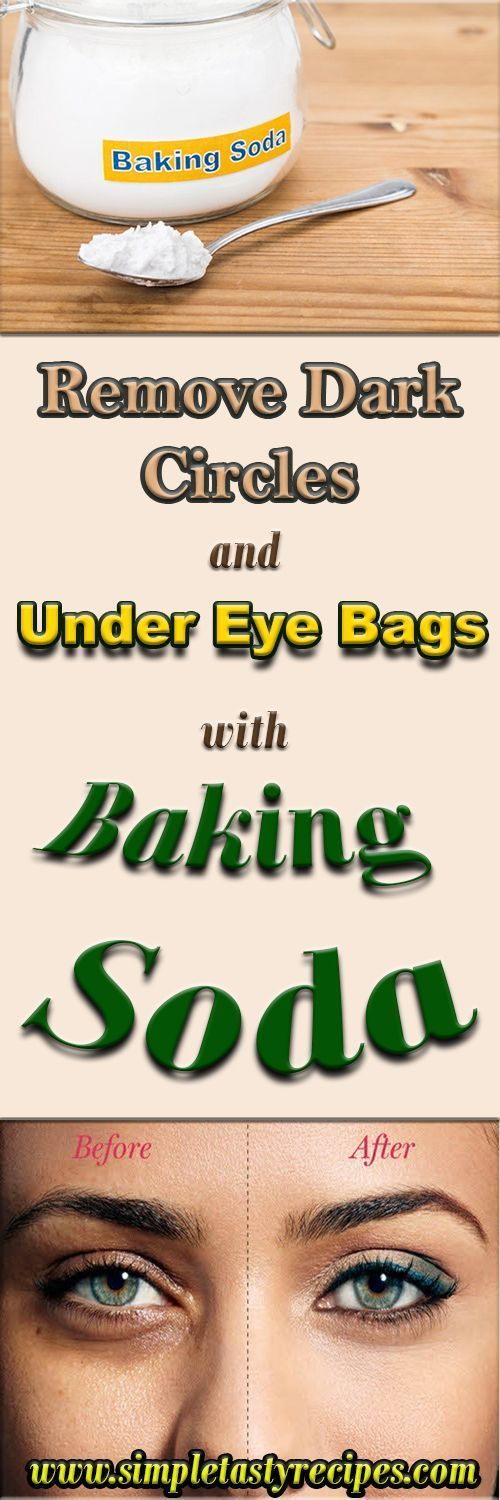 REMOVE DARK CIRCLES AND UNDER EYE BAGS WITH BAKING SODA – HEALTH AND BEAUTY  #health #fitness #beaut...