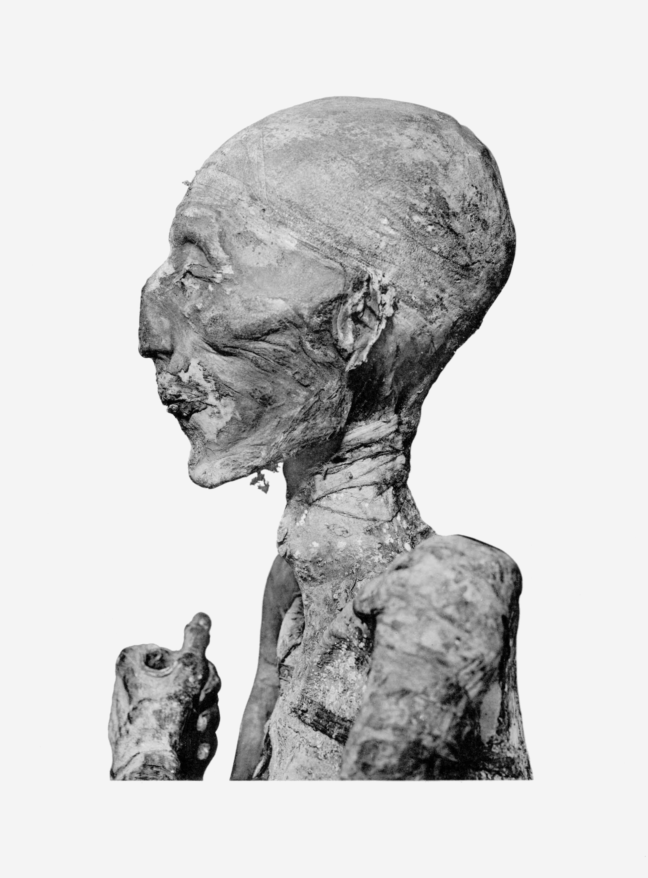 Doctors discovered cancer in the Egyptian mummy 2000 years after death