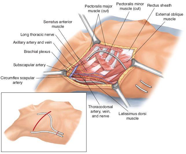 Surgicalcore Tablefigure My Emg Revealed Nerve Damage Throughout