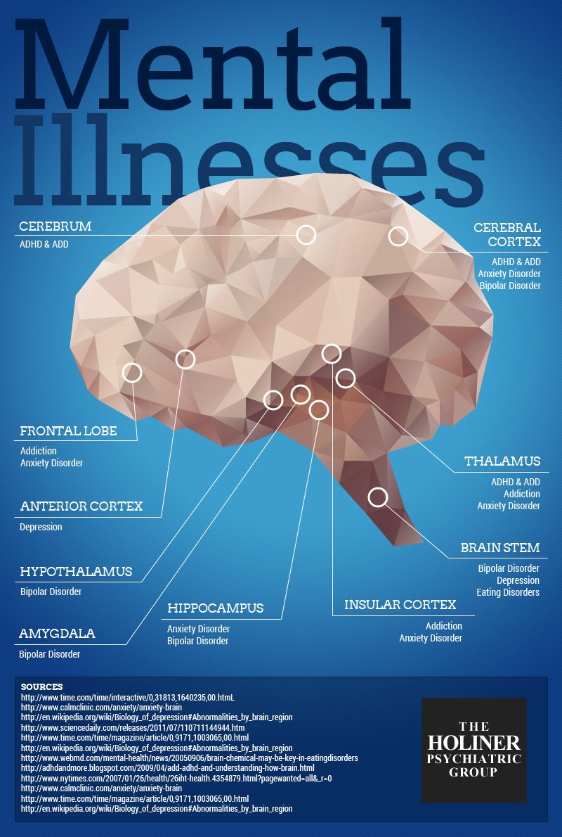 Brain Mental Health Infographic