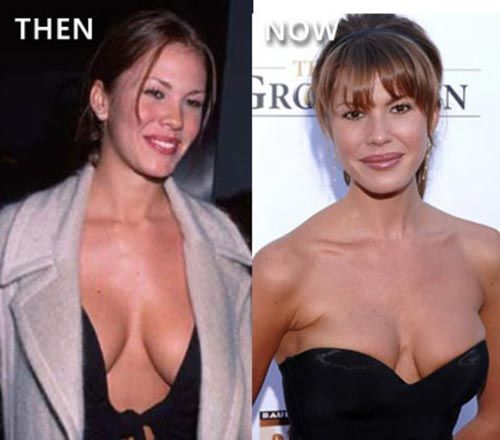 Nikki Cox Plastic Surgery Before & After