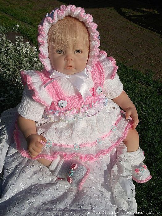 папилломы у ребенка на руке фото