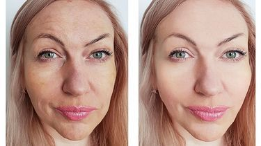 Photo of Laser Resurfacing for Better Skin: 9 Things You Must Know | …