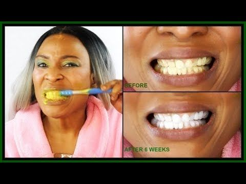 How To Whiten Teeth In 2 Minutes How To Get Really White Teeth
