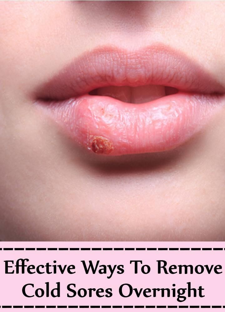 12 Effective Ways To Remove Cold Sores Overnight