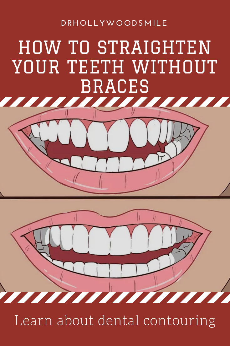 How To Straighten Your Teeth Without Braces Fix Teeth Crooked Teeth Teeth