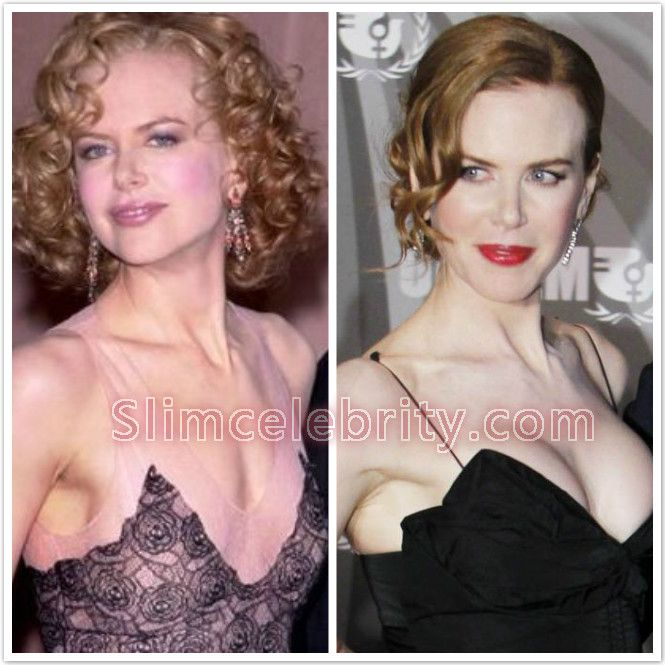 Celebrity Breast Implants - Pinterest