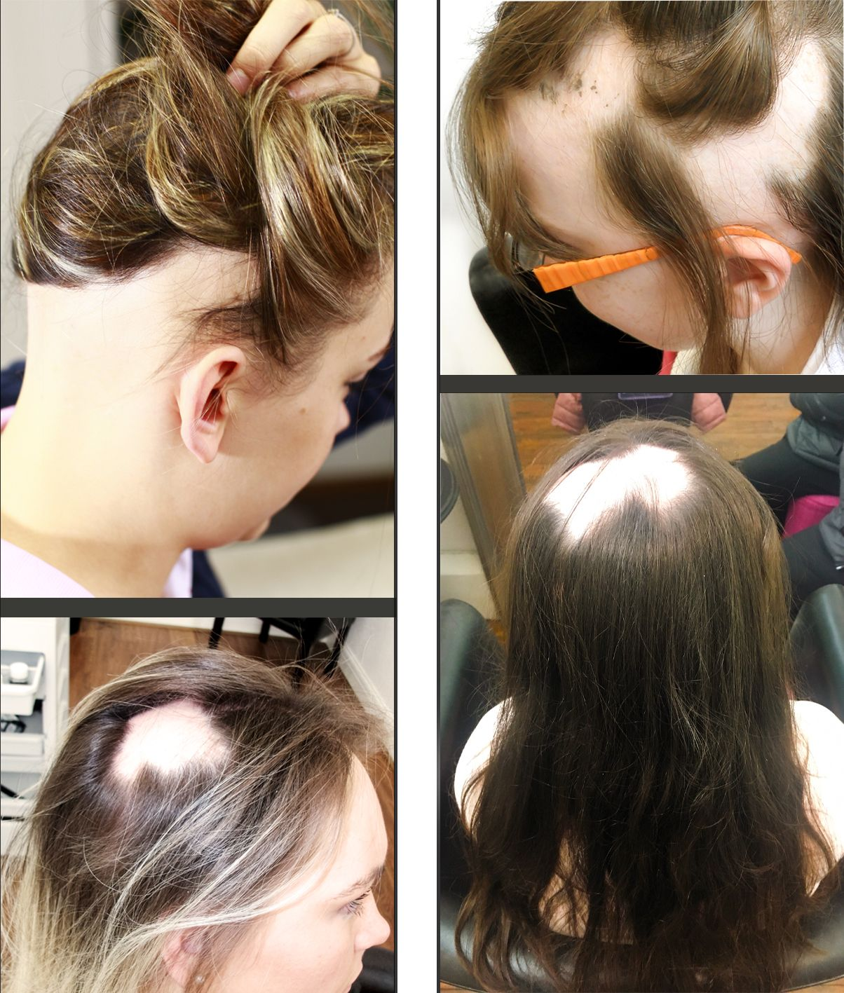 about hair loss causes: hair-solved | alopecia in 2019