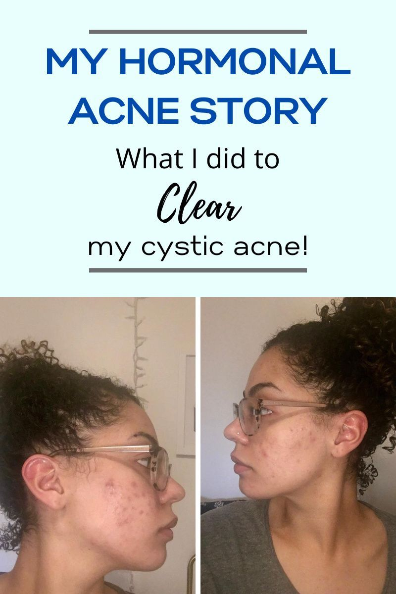 What I did to cure years of hormonal acne caused by PCOS. The supplement that finally worked for me.  Hormonal acne treatment. Hormonal acne treatment how to get rid. Hormonal acne treatment skincare. Cystic acne treatment. Cystic acne remedies. cystic acne treatment hormonal. cystic acne treatment products. cystic acne. #cysticacne #hormonalacne #hormonalacnetreatment #howtogetridofhormonalacne