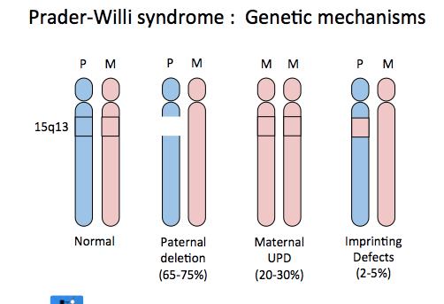 Prader–Willi syndrome
