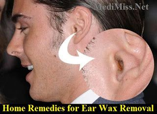 Home Remedies For Ear Wax Removal Home Remedies Pinterest