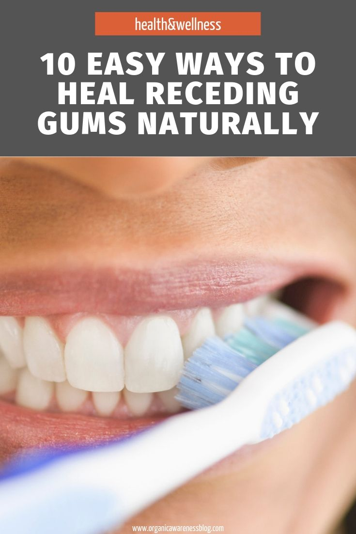 how to reverse periodontal disease naturally uk