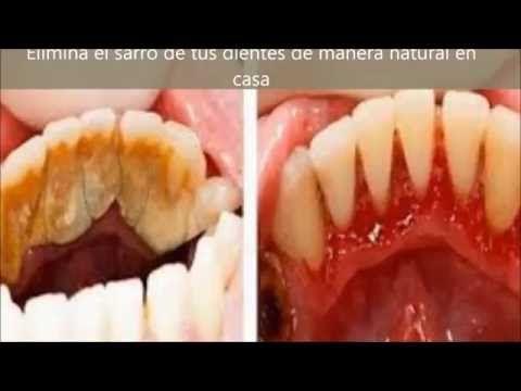 Elimina el sarro de tus dientes de manera natural en casa