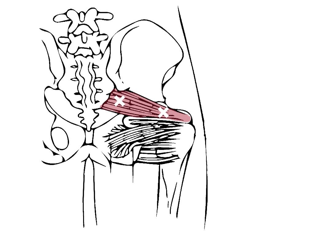 The Most Common Is The Closest To The Lateral Attachment