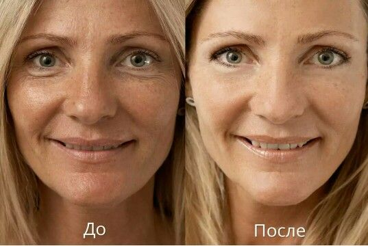 Народные методы удаления пигментных пятен на лице