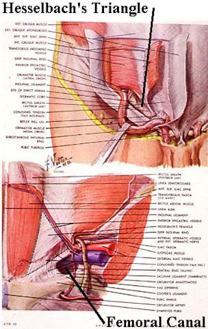 Direct Inguinal Hernias | General Surgery | Surgery | Pinterest ...