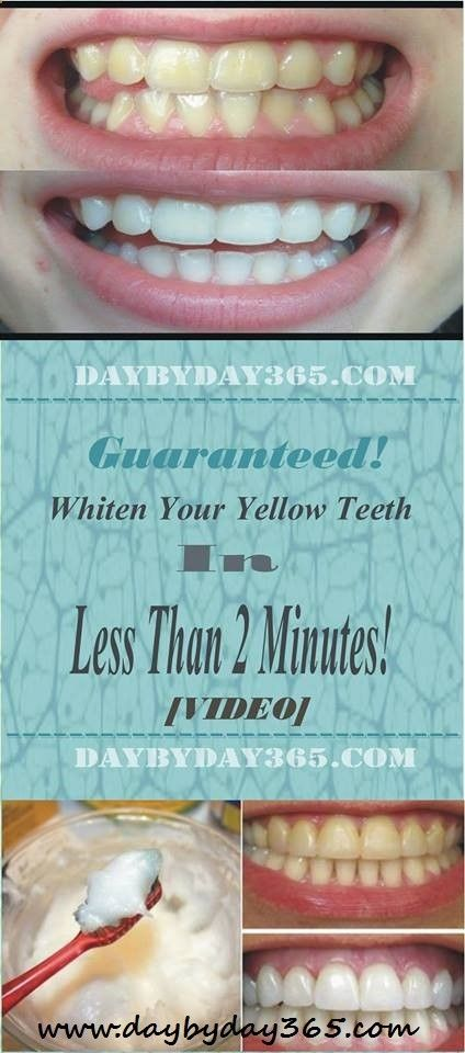 Video Guaranteed Whiten Your Yellow Teeth In Less Than 2 Minutes