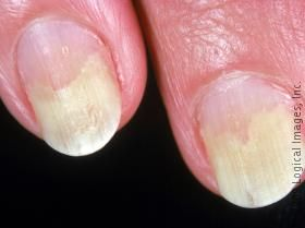 This Image Displays Onycholysis Which Means Lifting Of The Nail From Bed