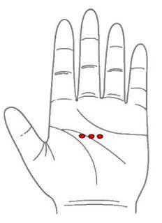 Auriculoterapia para bajar de peso puntos rojos